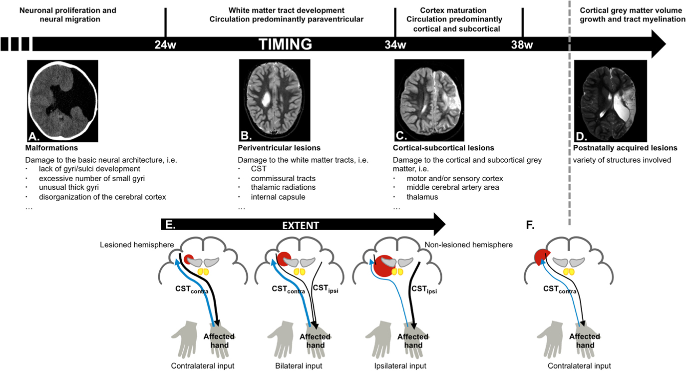 Frontiers | The Corticospinal Tract: A Biomarker to Categorize Upper ...
