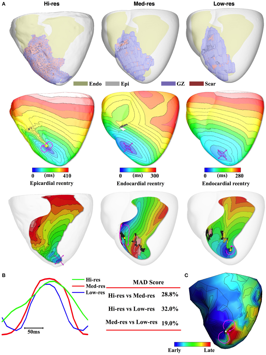 Frontiers Accuracy Of Prediction Infarct Related Arrhythmic Ecg Simulator Circuit