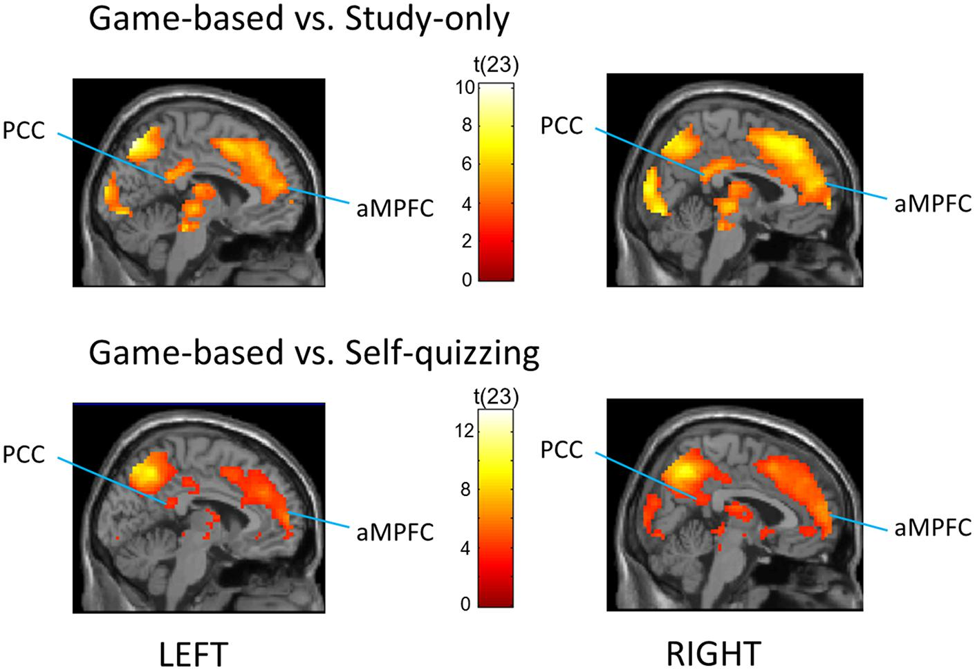 Frontiers | Gamification of Learning Deactivates the Default Mode ...