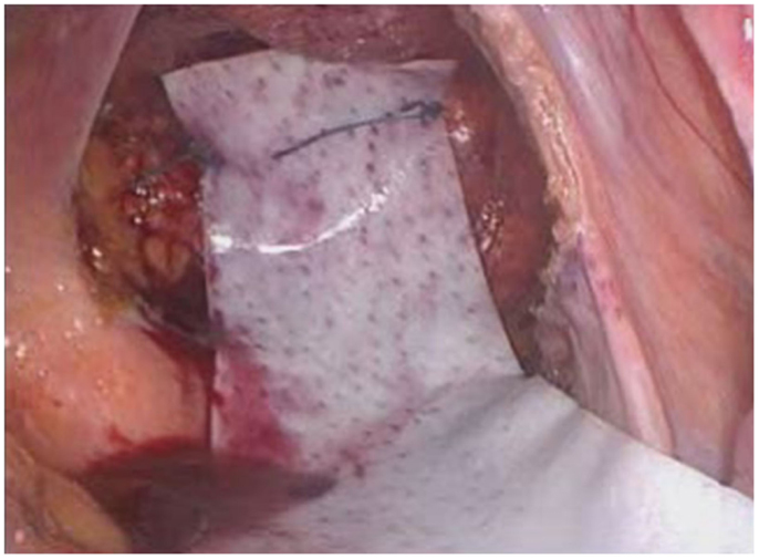 Frontiers Rectopexy For Rectal Prolapse Surgery