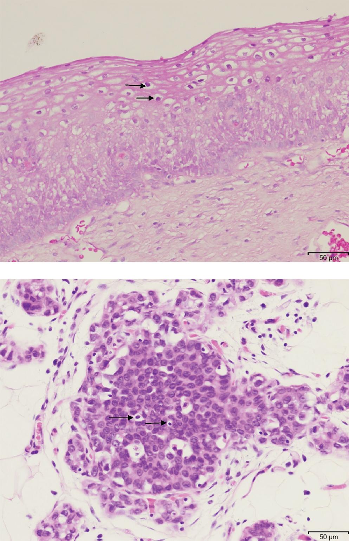 Case study on a cervical cancer patient
