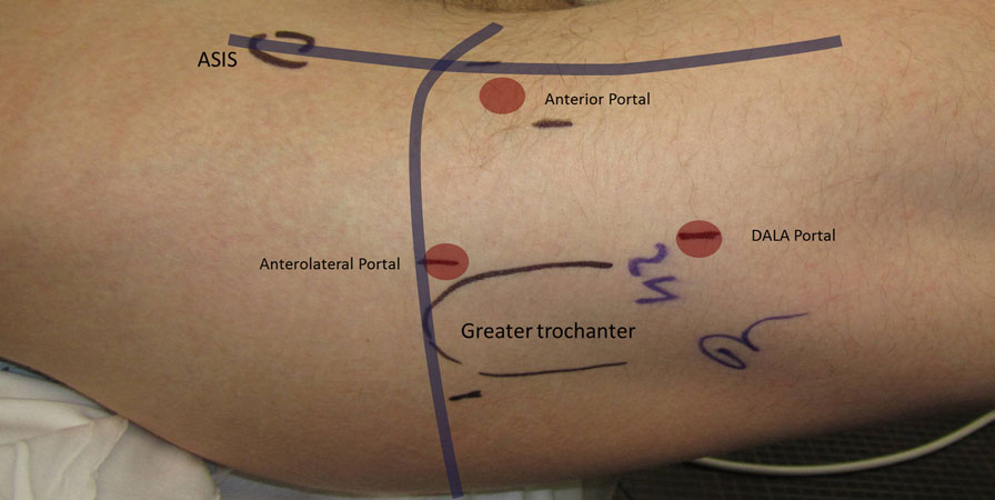 Frontiers Open And Arthroscopic Surgical Treatment Of