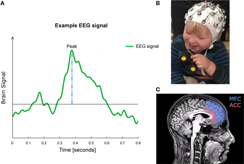 Figure 1 - (A) This is what an EEG brain signal could look like. (B) Picture of a toddler wearing an EEG cap. (C) If you imagine splitting a brain into two halves, much like a peanut, it is the inside part of one half that you see here. Anterior cingulate cortex (ACC) and medial frontal cortex (MFC) are in color. These are some of the regions that develop during the teenage years. Figure (C) adapted from DrOONeil http://commons.wikimedia.org/wiki/File:FMRI_Brain_Scan.jpg