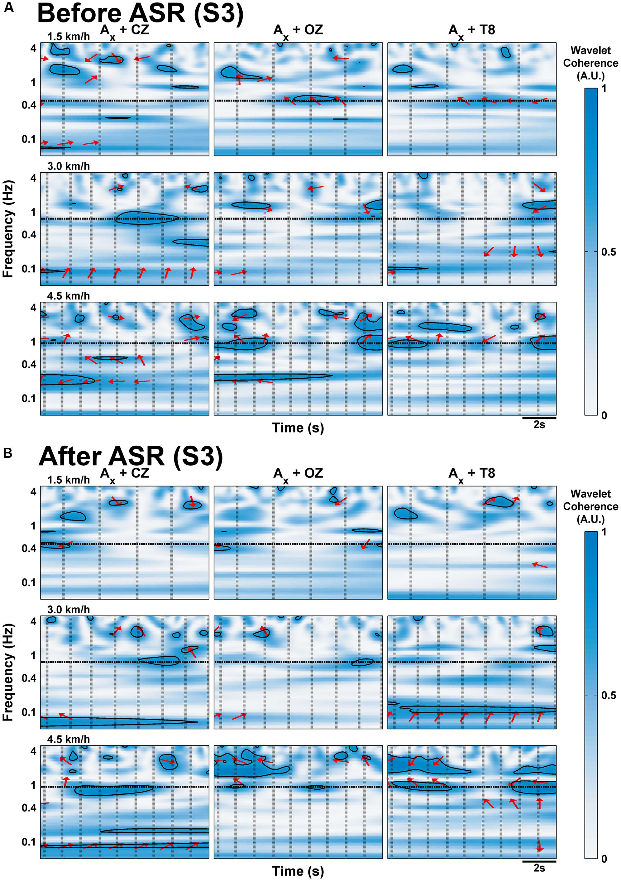 Frontiers | Negligible Motion Artifacts in Scalp