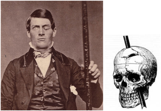 Figure 1 - Phineas Gage, holding the iron rod that penetrated his forehead.