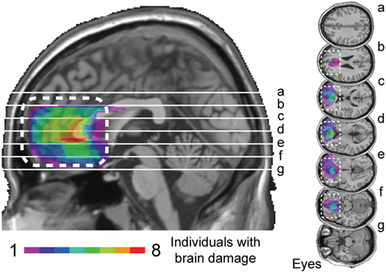 Figure 3 - Overlap map for patients with prefrontal brain damage.