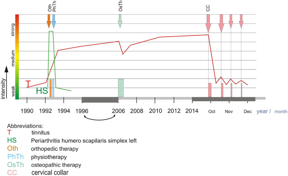 Frontiers   Chronic Cervicogenic Tinnitus Rapidly Resolved
