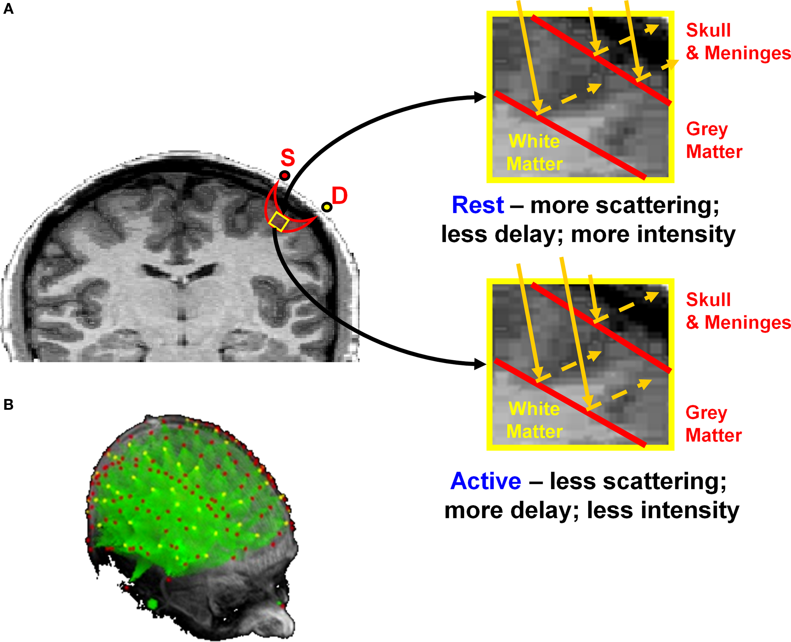Frontiers Fast Optical Imaging Of Human Brain Function Frontiers