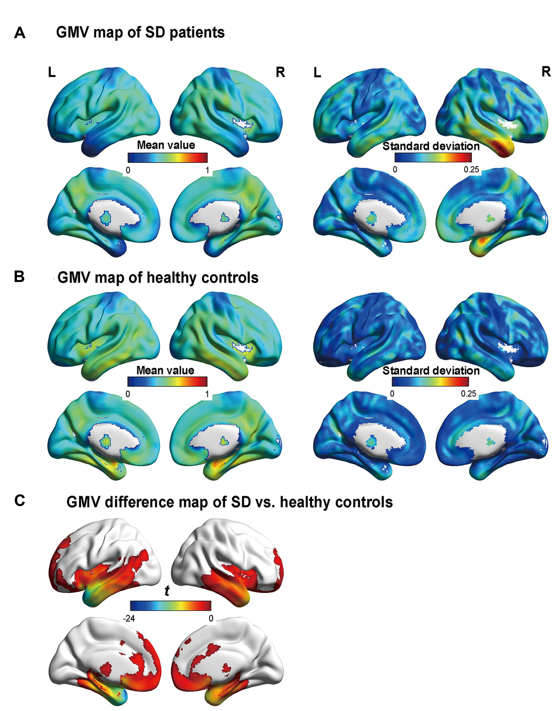 Frontiers | The Left Fusiform Gyrus is a Critical Region