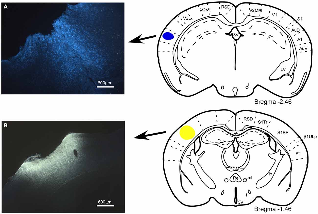 Frontiers | Modulation of Specific Sensory Cortical Areas by ...
