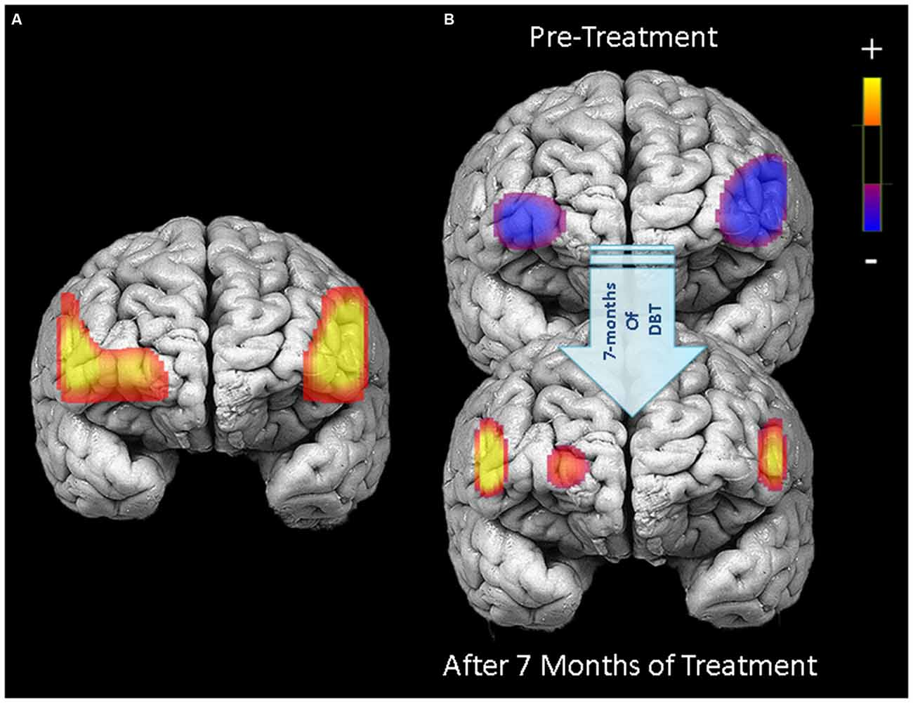 Frontiers | Predicting Treatment Outcomes from Prefrontal ...