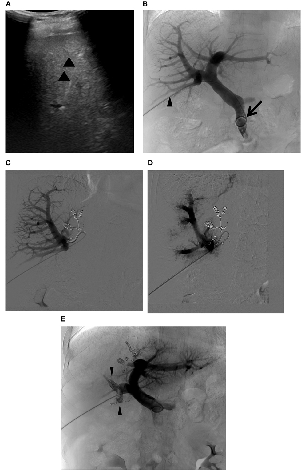 Frontiers | Portal Vein Embolization as an Oncosurgical Strategy ...