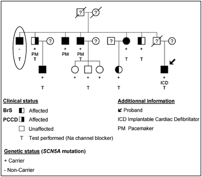 Frontiers | The Brugada Syndrome: A Rare Arrhythmia Disorder with