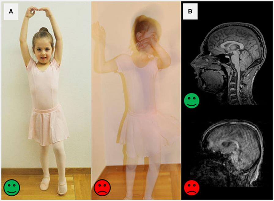 איור 2 - מדוע חשוב להישאר במצב דוֹמֵם בעת סריקת MRI (A) תמונה שצולמה על-ידי מצלמה רגישה יכולה להיות חדה מאוד כאשר אדם עומד בצורה דוממת (פרצוף ירוק שמח).