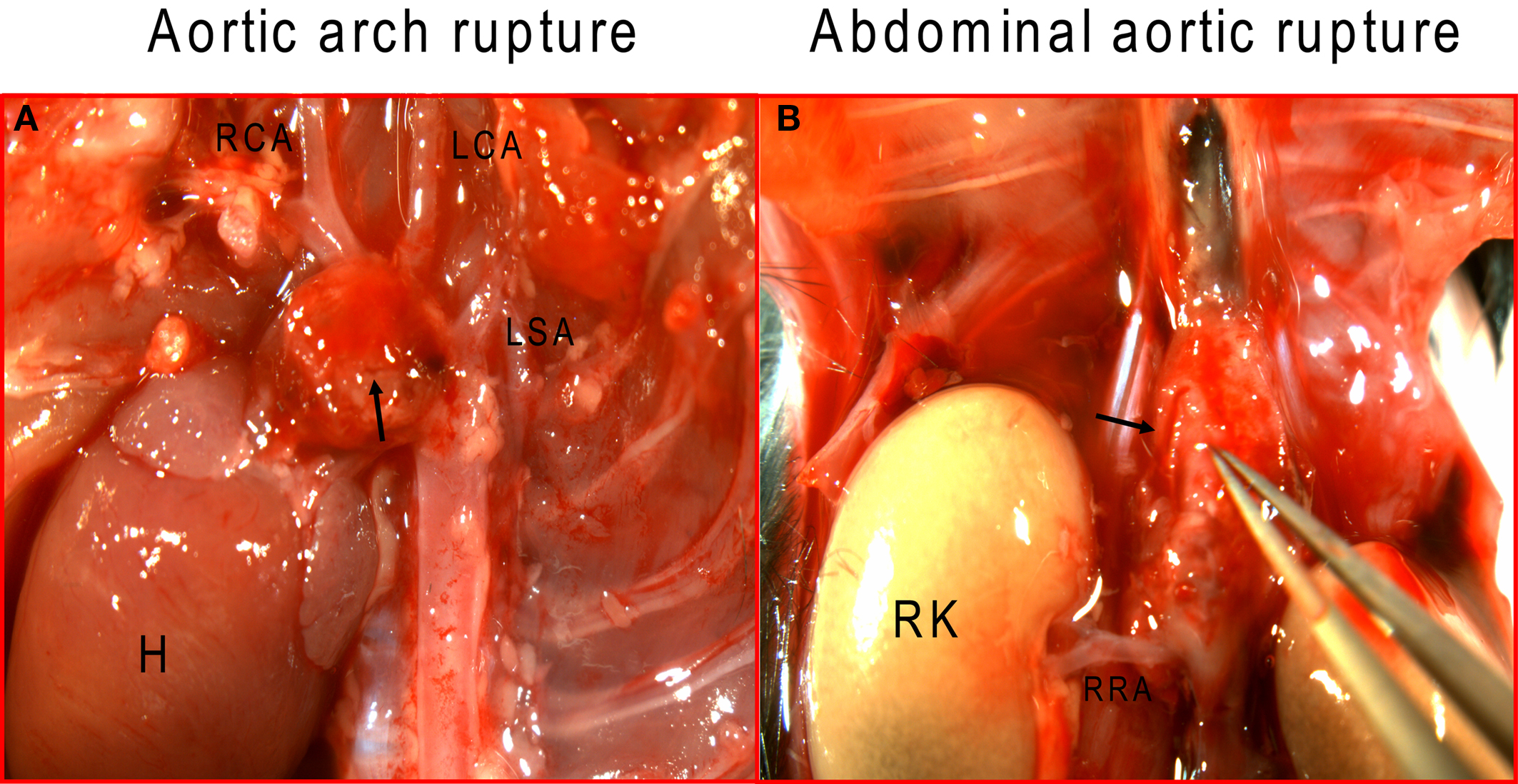 Frontiers The Murine Angiotensin Ii Induced Abdominal Aortic