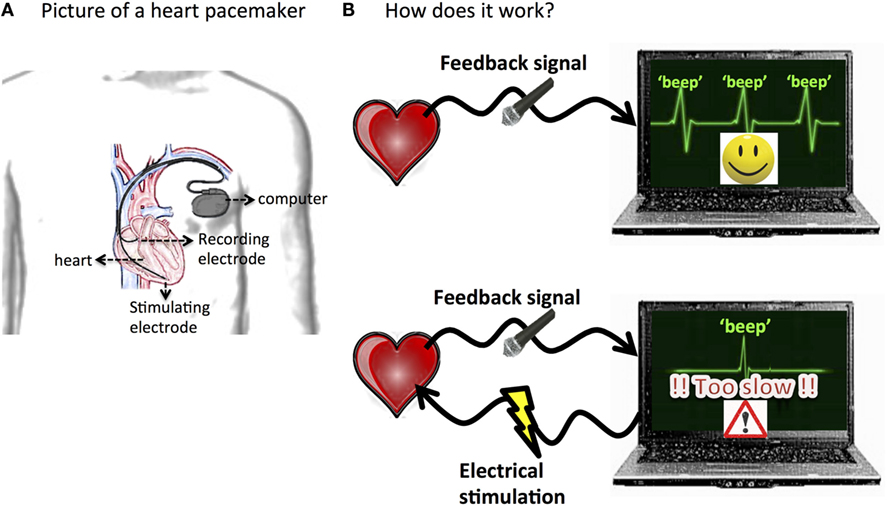 Figure 2 - Illustration of a heart pacemaker.