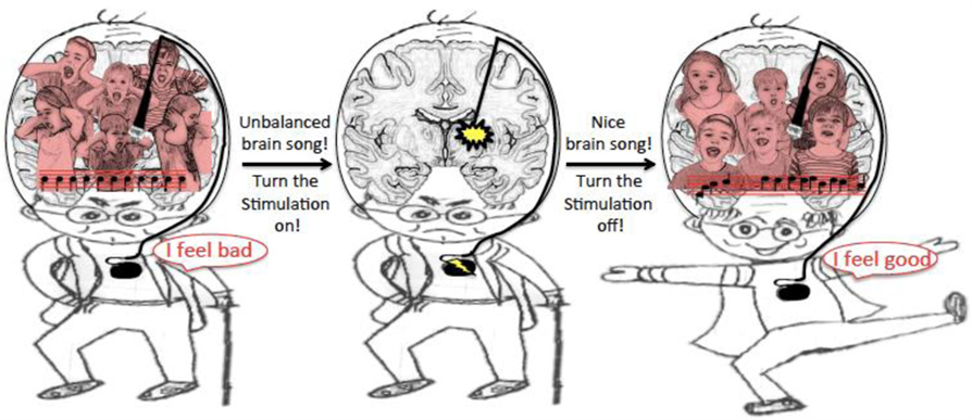 "Figure 4 - Illustration of DBS using ""brain song"" as a feedback signal."