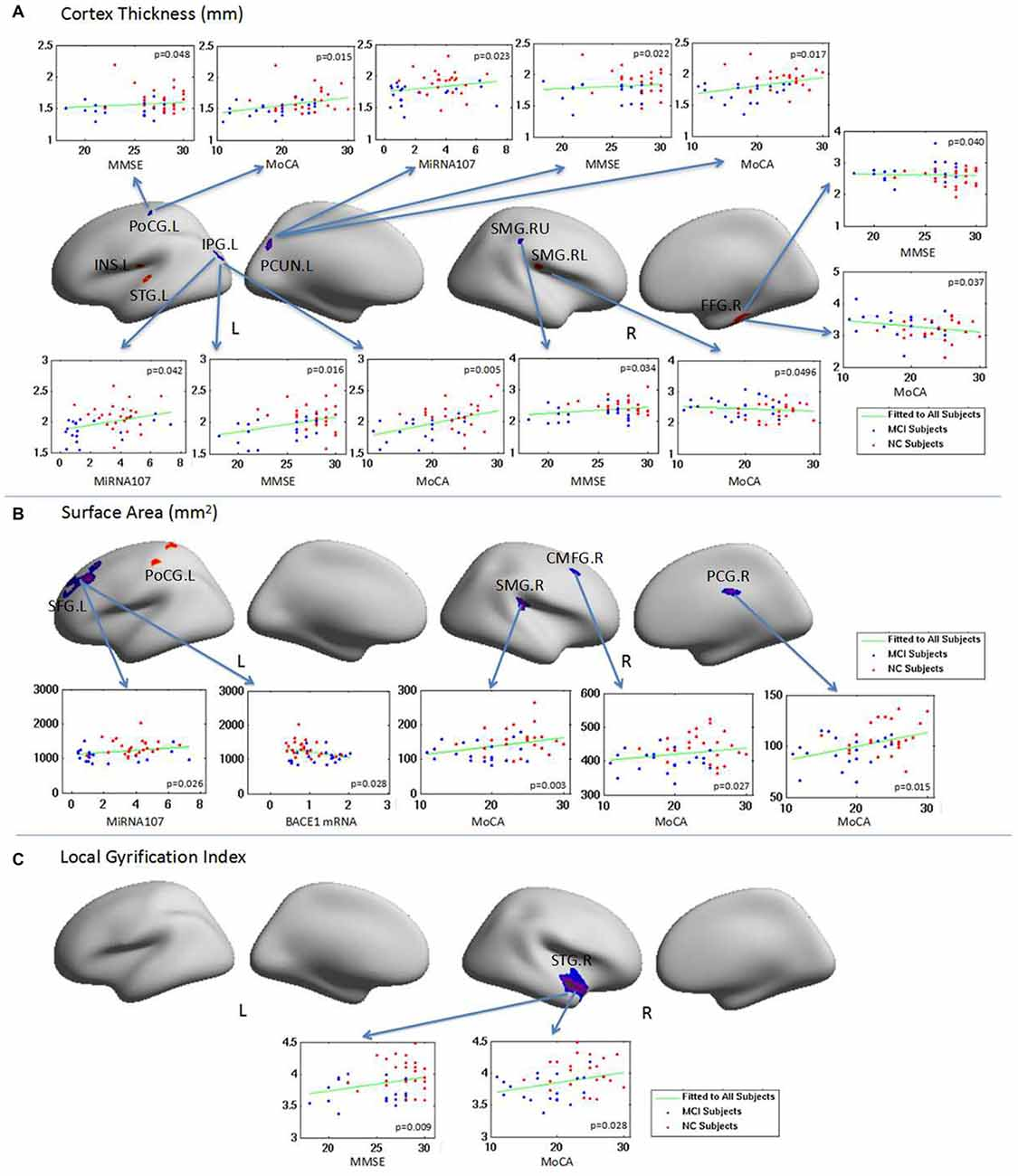 Frontiers Abnormal Changes Of Brain Cortical Anatomy And The