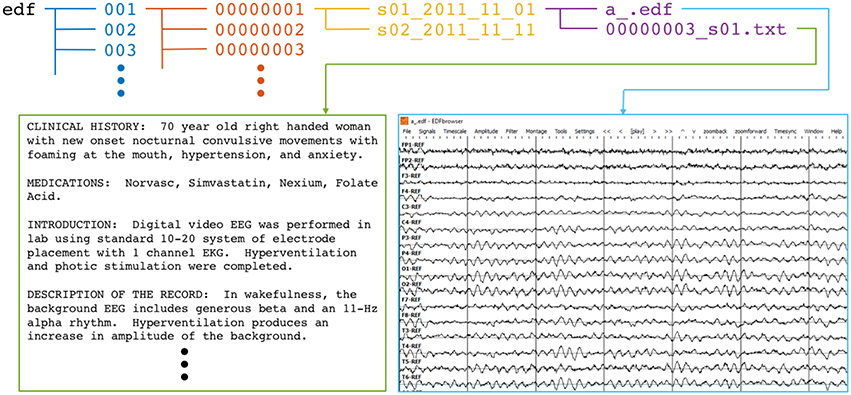 Frontiers | The Temple University Hospital EEG Data Corpus