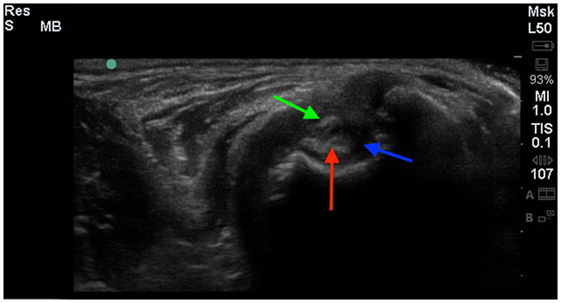 Frontiers Adhesive Capsulitis In Eight Dogs Diagnosis