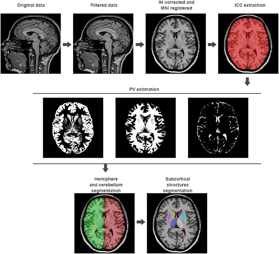 Frontiers | volBrain: An Online MRI Brain Volumetry System