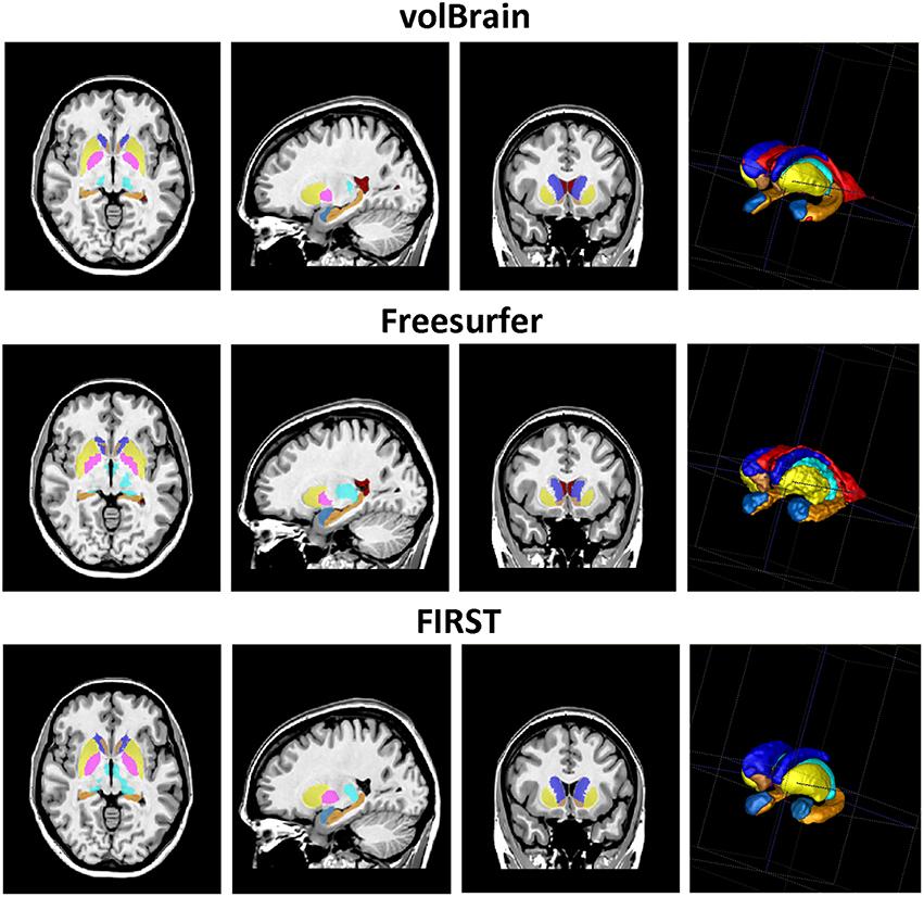 Frontiers   volBrain: An Online MRI Brain Volumetry System