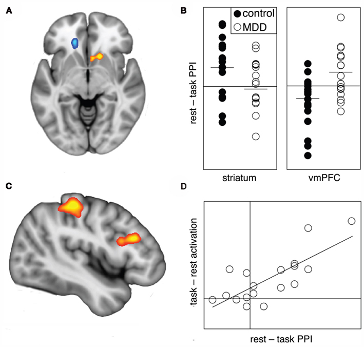 Frontiers Task Related Deactivation And Functional Connectivity Of