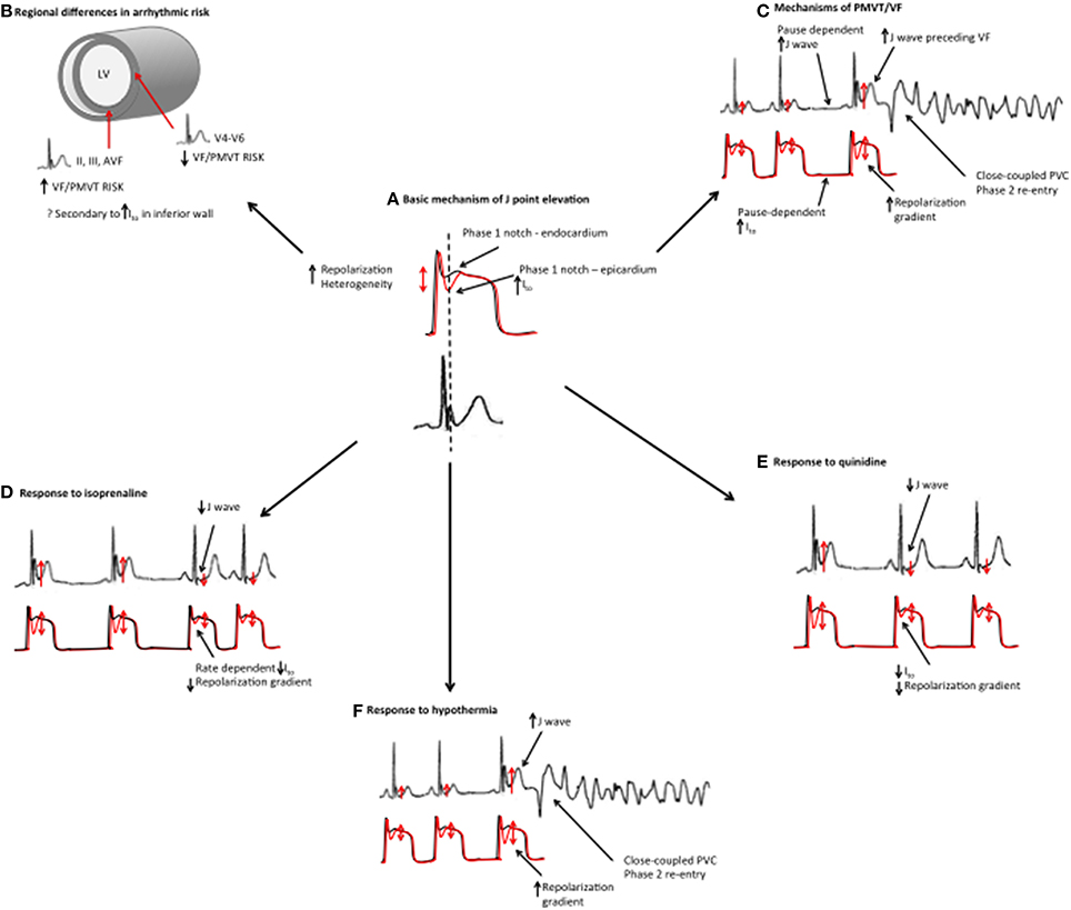 Syndrome of early repolarization of the ventricles