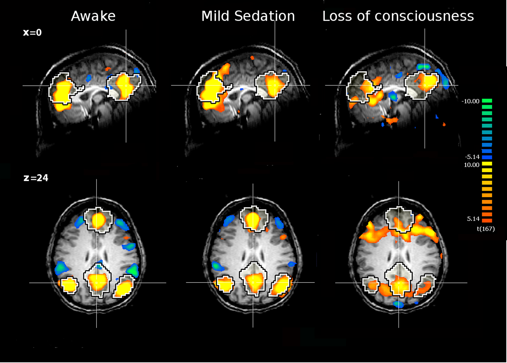Induced coma brain activity