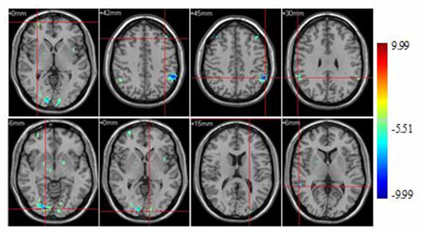 Hack your brain to remember almost anything - CNN