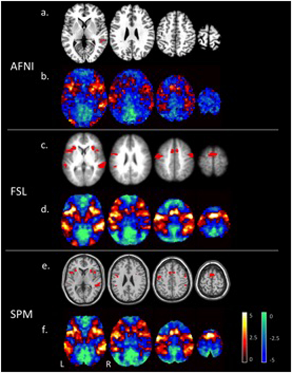 Frontiers | Exploring fMRI Results Space: 31 Variants of an