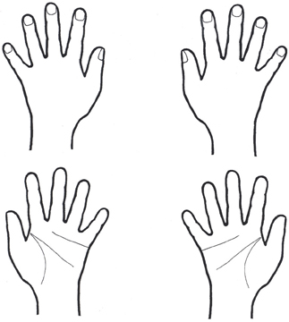 Frontiers | Limb activation ameliorates -related ... on