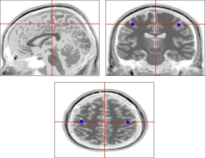 Radiology Secrets Plus Pdf