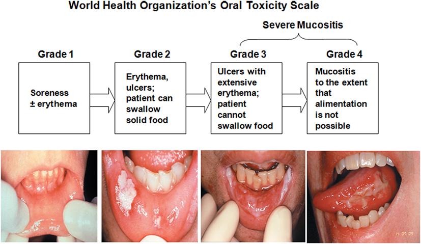 Image Result For Grade  Cancer