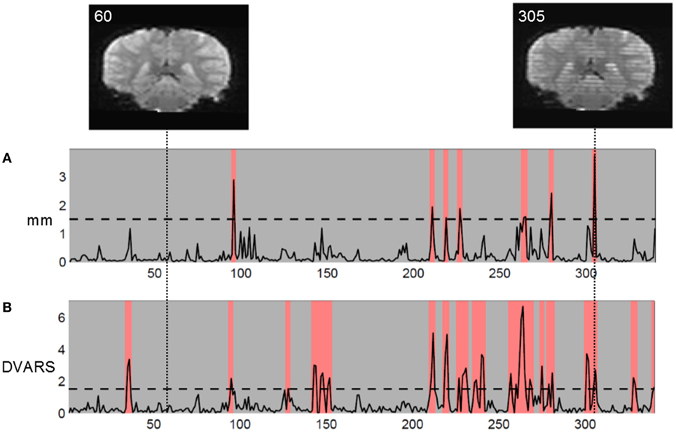Frontiers | Are Movement Artifacts in Magnetic Resonance