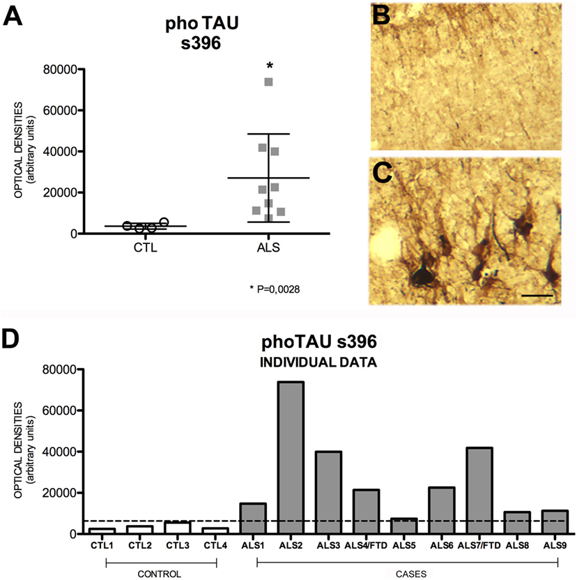 Frontiers | Immununochemical Markers of the Amyloid Cascade in the