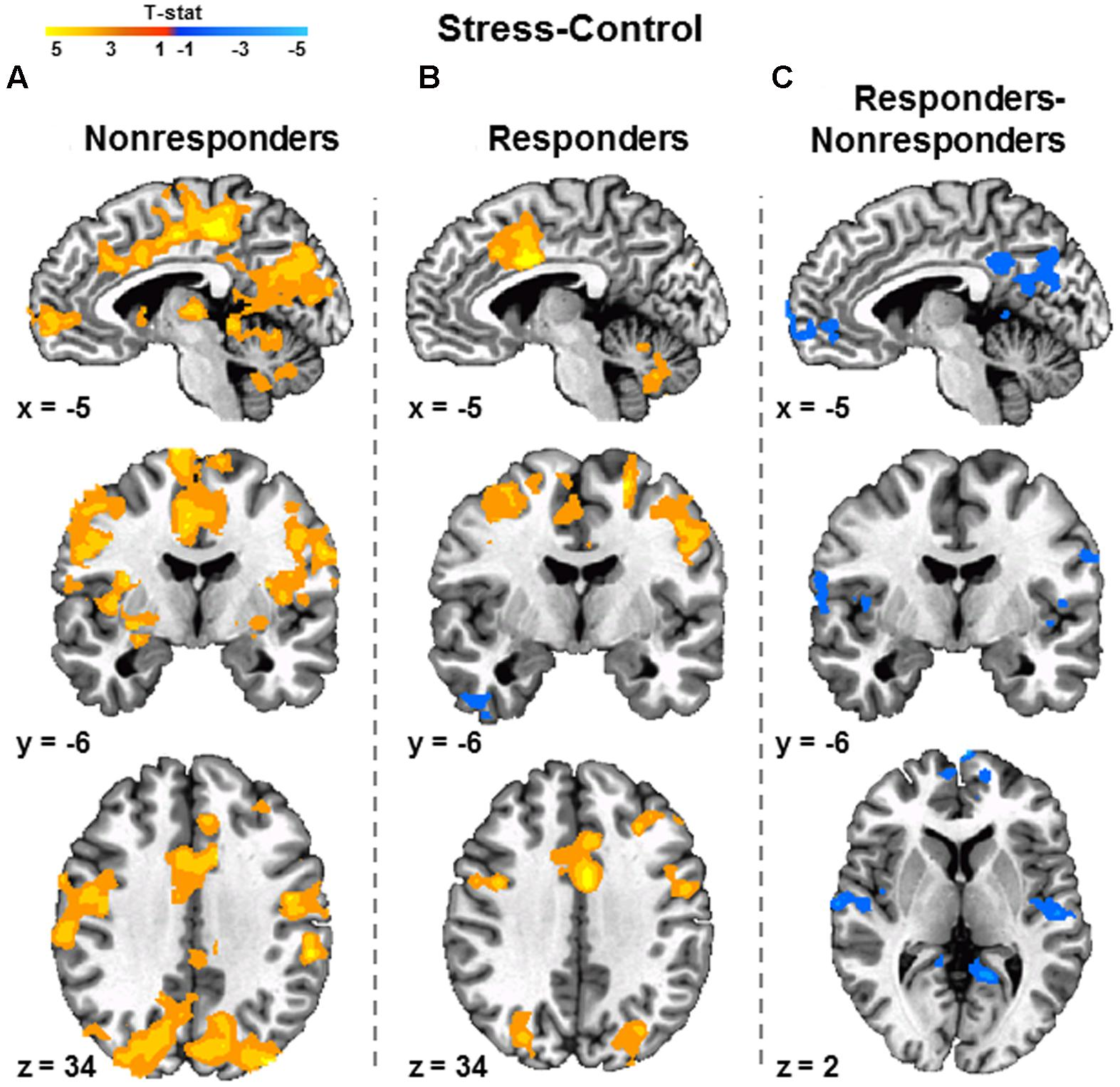differential activation of hippocampus and amygdala relationship