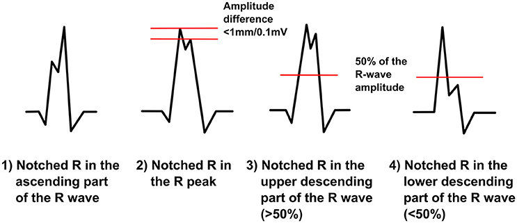 frontiers qrs fragmentation patterns representing myocardial scar