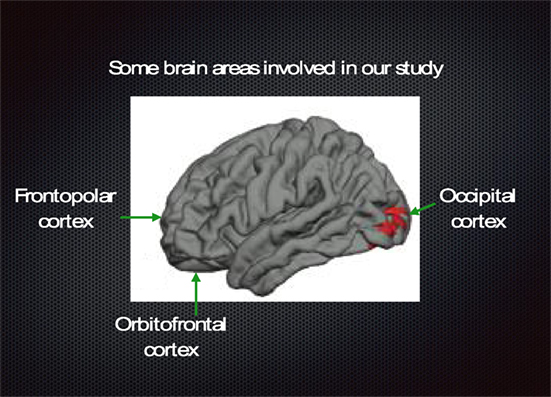 Figure 3 - Side view of human brain showing the left side of the brain, with the front of the brain on the left side of the image and the back of the brain on the right.