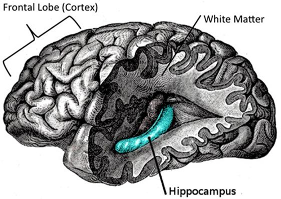 Figure 2 - Brain areas involved in creativity.