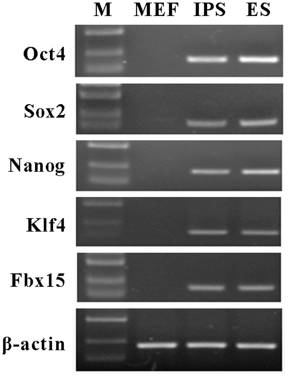 Frontiers | Induced Pluripotent Stem Cells Inhibit Bleomycin-Induced