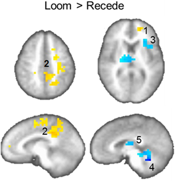 Figure 2 - Brain activation for the Loom versus the Recede condition.
