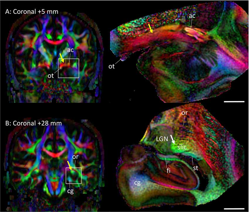 Frontiers | Elucidation of White Matter Tracts of the Human Amygdala ...