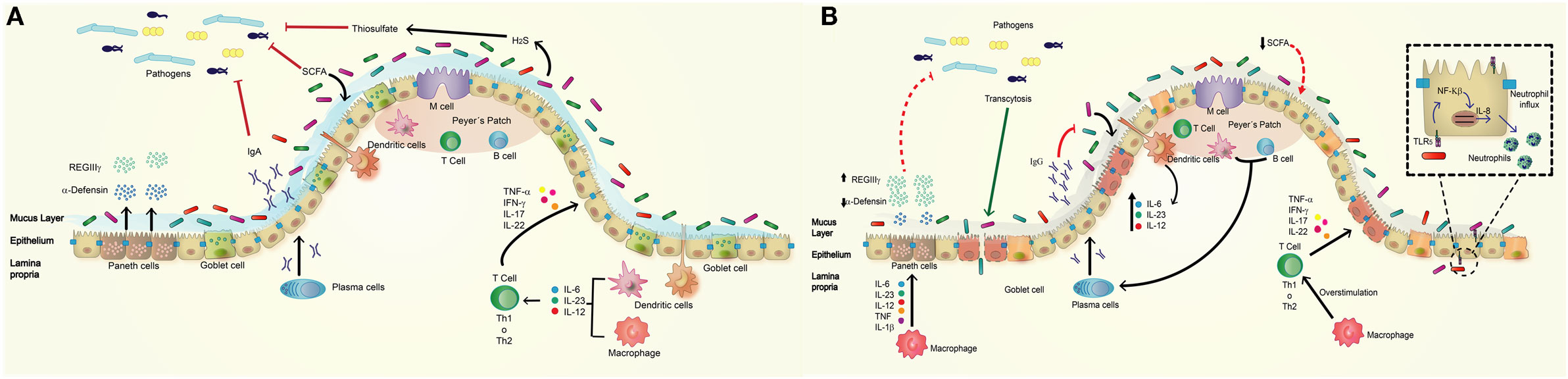 Frontiers | A Potential Role of Salmonella Infection in the Onset of