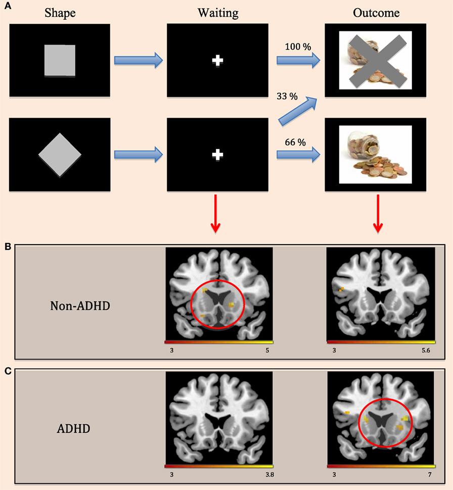 איור 3 - A. סטודנטים ראו סדרת תמונות על מסך המחשב במכשיר ה־MRI.