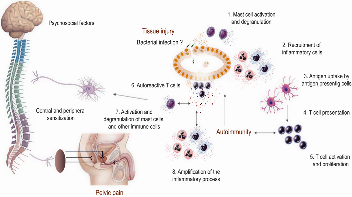 Frontiers | Immunological Mechanisms Underlying Chronic Pelvic Pain