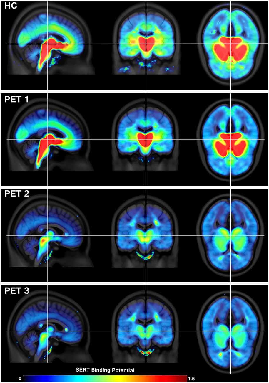 motion depression serotonin
