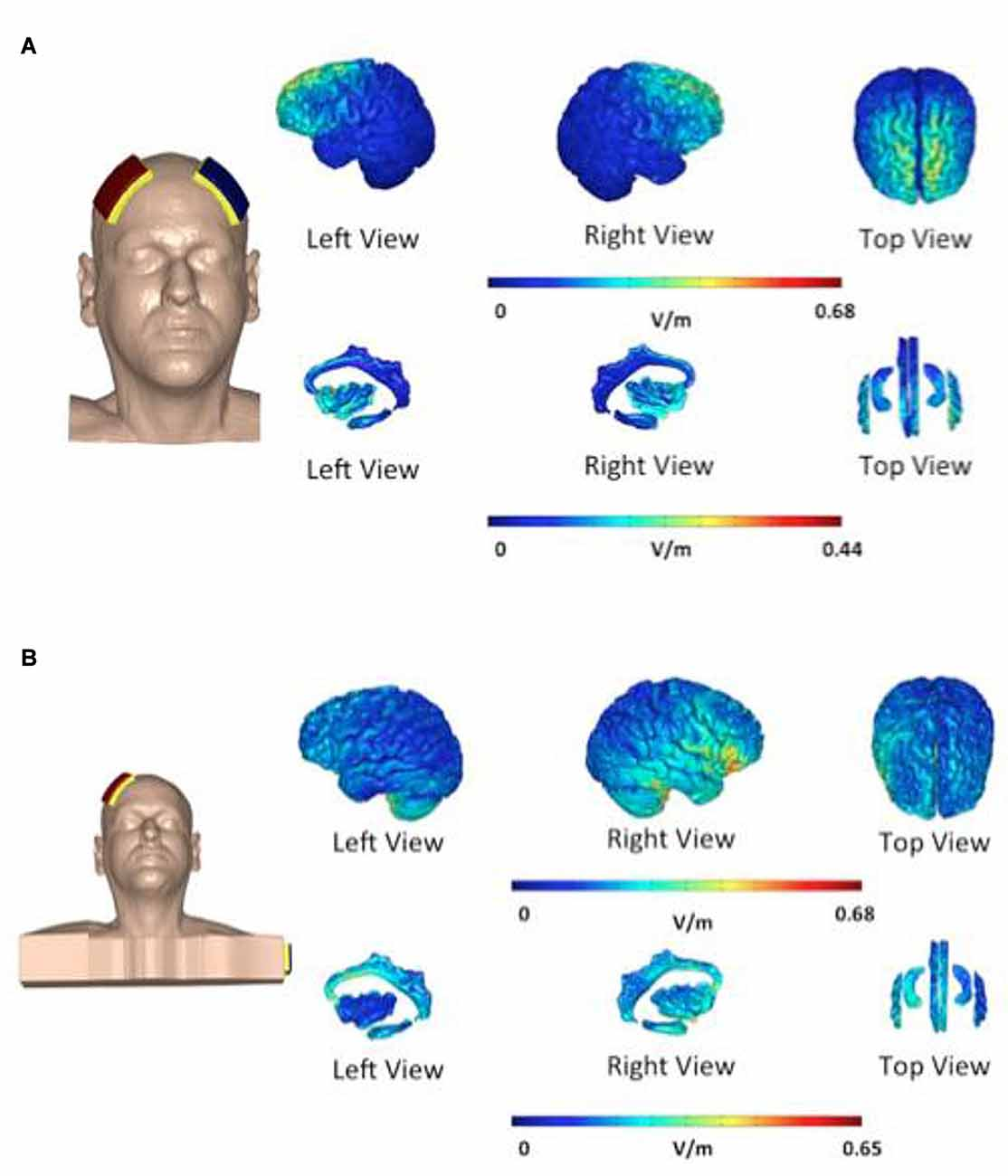 e4eabd37654 Both electrode placements stimulated the right side of the hippocampus
