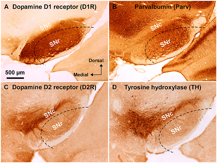 Update on the Role of Substantia Nigra Pars Reticulata in ...