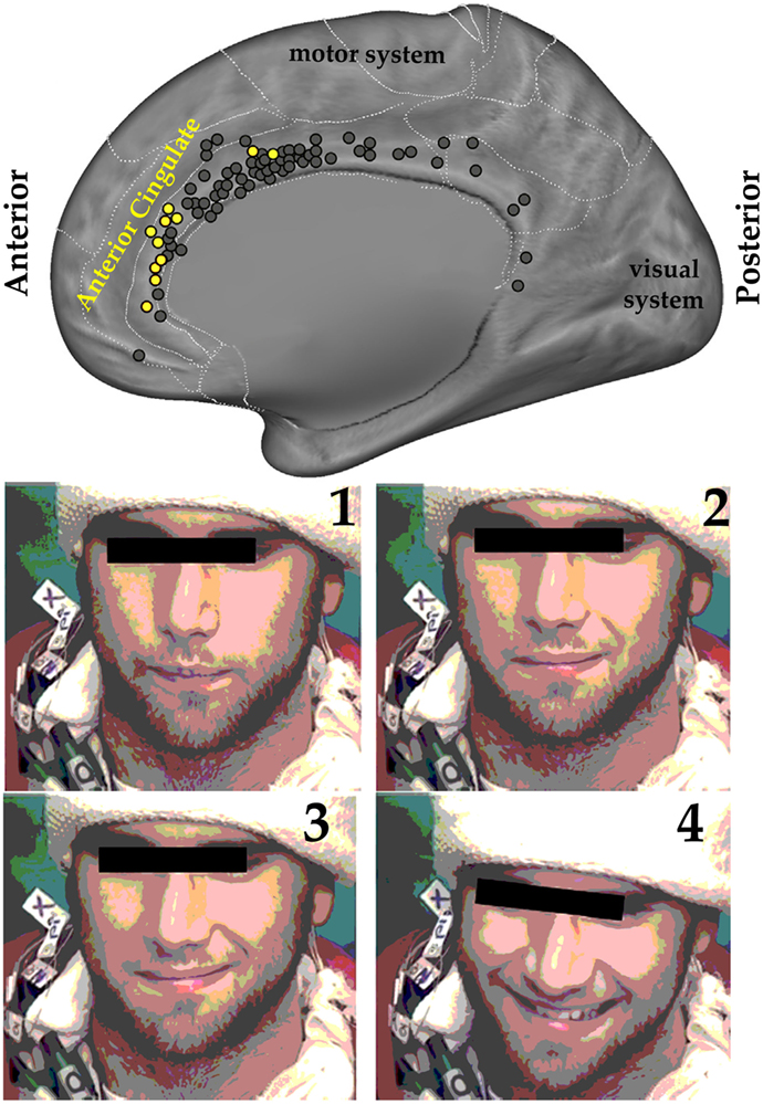 Figure 3 - Upper panel: The figure shows the right side of the human brain from what is called a medial perspective—imagine the left side of the brain was removed, allowing us to see the inside of the right side of the brain.